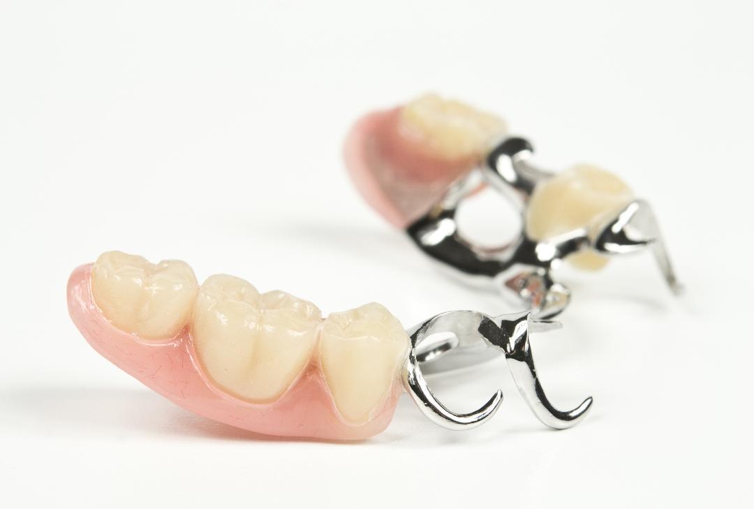 Ohne gaumenplatte zahnprothese Zahnprothese: Teilprothese,